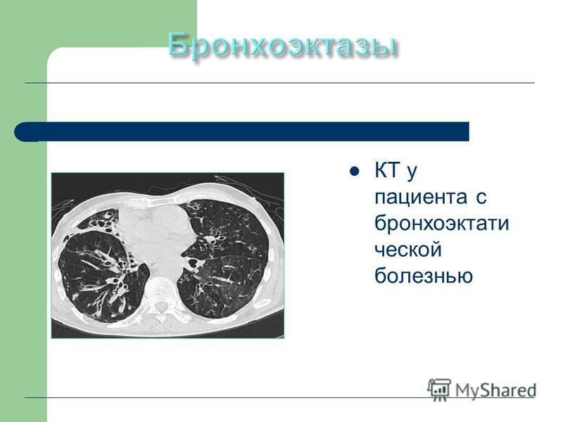 КТ у пациента с бронхоэктатической болезнью
