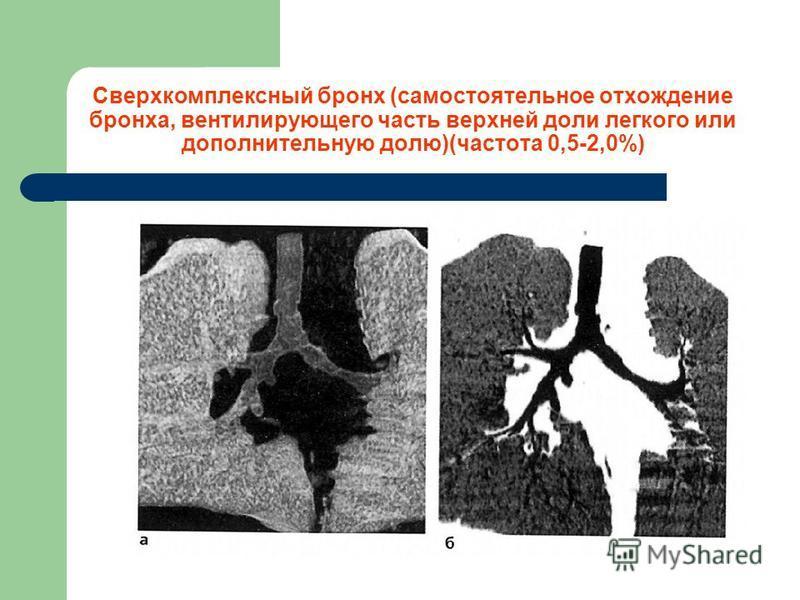 Сверхкомплексный бронх (самостоятельное отхождение бронха, вентилирующего часть верхней доли легкого или дополнительную долю)(частота 0,5-2,0%)