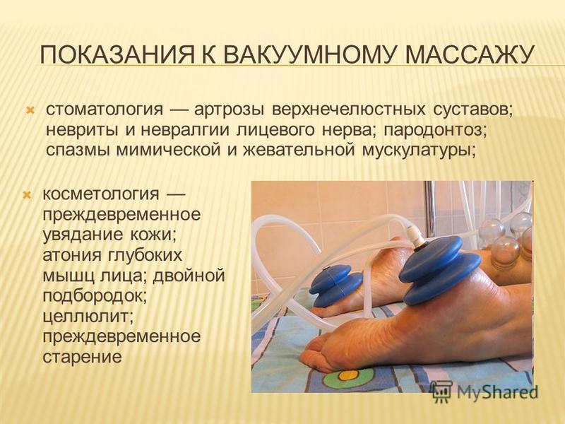 ПОКАЗАНИЯ К ВАКУУМНОМУ МАССАЖУ стоматология артрозы верхнечелюстных суставов; невриты и невралгии лицевого нерва; пародонтоз; спазмы мимической и жевательной мускулатуры; косметология преждевременное увядание кожи; атония глубоких мышц лица; двойной
