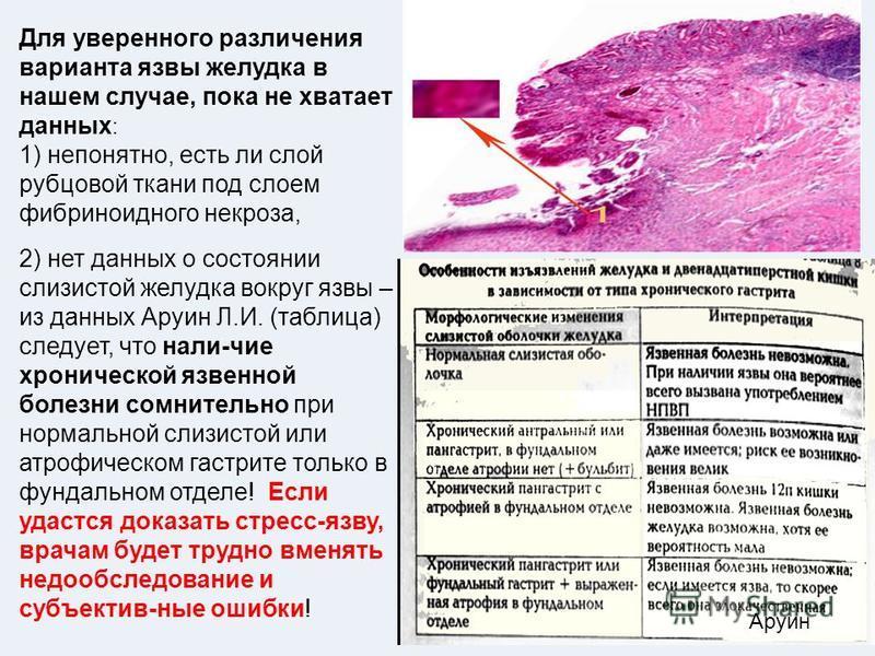 Аруин Для уверенного различения варианта язвы желудка в нашем случае, пока не хватает данных : 1) непонятно, есть ли слой рубцовой ткани под слоем фибриноидного некроза, 2) нет данных о состоянии слизистой желудка вокруг язвы – из данных Аруин Л.И. (