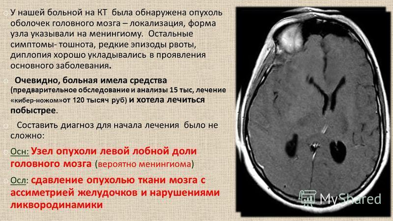 o У нашей больной на КТ была обнаружена опухоль оболочек головного мозга – локализация, форма узла указывали на менингиому. Остальные симптомы- тошнота, редкие эпизоды рвоты, диплопия хорошо укладывались в проявления основного заболевания. o Очевидно