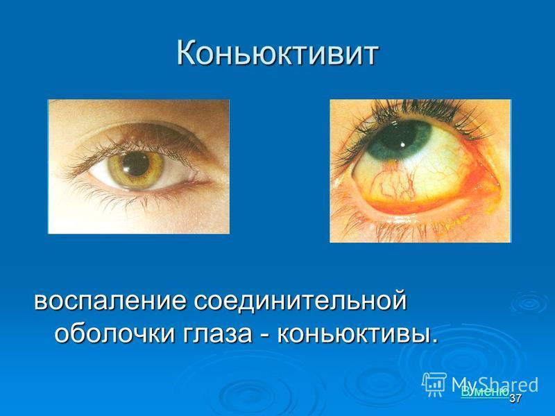 Коньюктивит воспаление соединительной оболочки глаза - коньюктивы. В меню 37