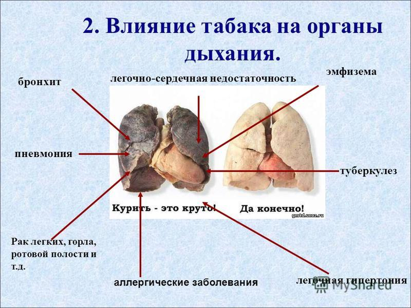 2. Влияние табака на органы дыхания. пневмония бронхит Рак легких, горла, ротовой полости и т.д. легочная гипертония легочто-сердечная недостаточтость эмфизема аллергические заболевания туберкулез