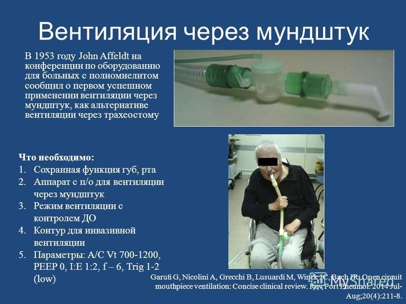 Вентиляция через мундштук В 1953 году John Affeldt на конференции по оборудованию для больных с полиомиелитом сообщил о первом успешном применении вентиляции через мундштук, как альтернативе вентиляции через трахеостому Что необходимо: 1. Сохранная ф