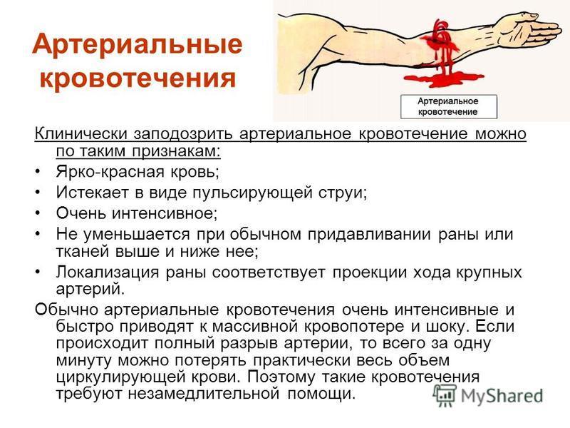 Артериальные кровотечения Клинически заподозрить артериальное кровотечение можно по таким признакам: Ярко-красная кровь; Истекает в виде пульсирующей струи; Очень интенсивное; Не уменьшается при обычном придавливании раны или тканей выше и ниже нее;