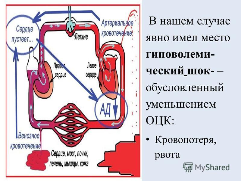 В нашем случае явно имел место гиповолемический шок- – обусловленный уменьшением ОЦК: Кровопотеря, рвота