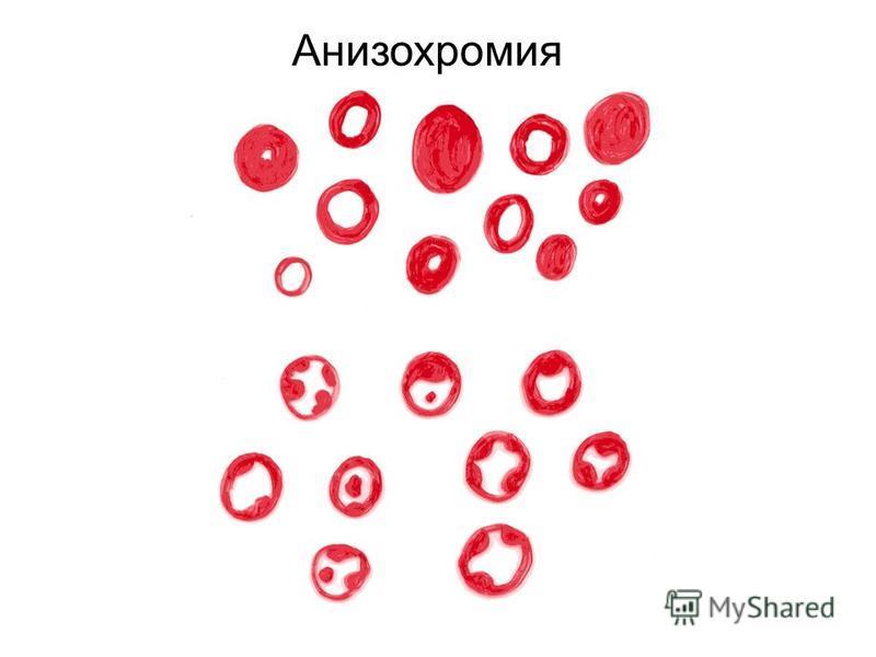 Анизохромия