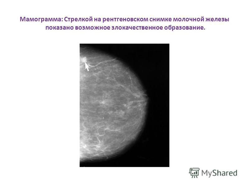Мамограмма: Стрелкой на рентгеновском снимке молочной железы показано возможное злокачественное образование.