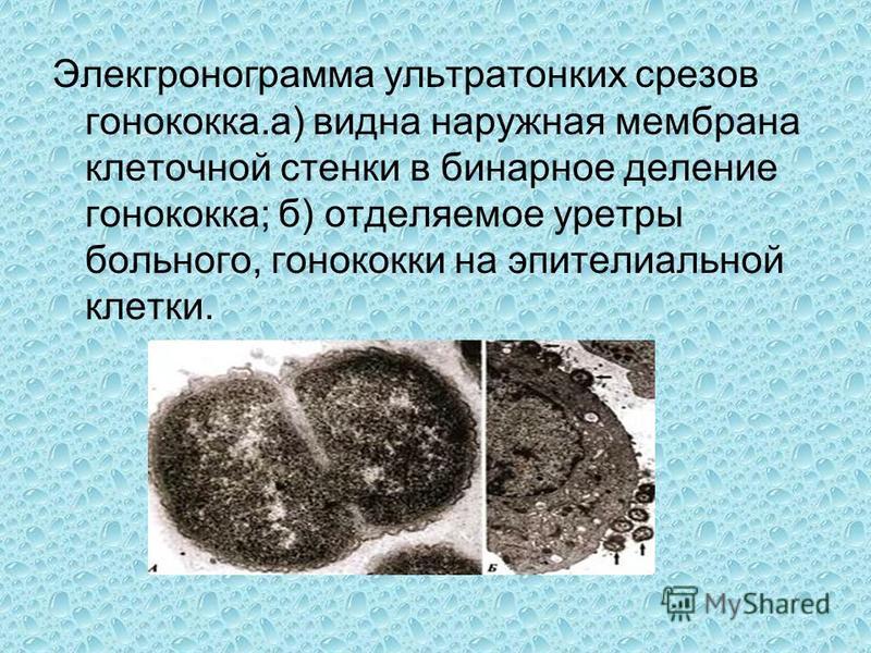 Элекгронограмма ультратонких срезов гонококка.а) видна наружная мембрана клеточной стенки в бинарное деление гонококка; б) отделяемое уретры больного, гонококки на эпителиальной клетки.