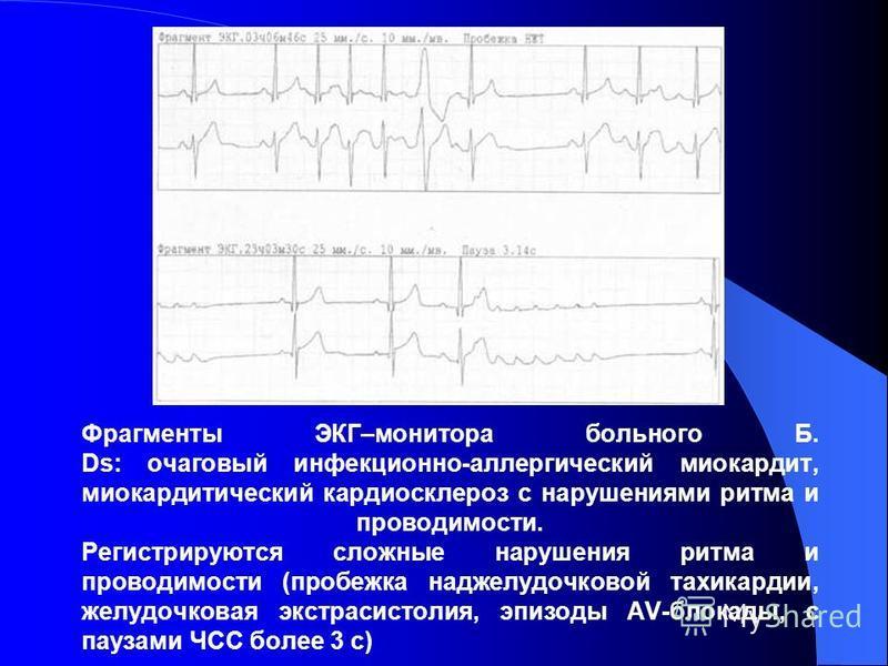 Фрагменты ЭКГ–монитора больного Б. Ds: очаговый инфекционно-аллергический миокардит, миокардитический кардиосклероз с нарушениями ритма и проводимости. Регистрируются сложные нарушения ритма и проводимости (пробежка наджелудочковой тахикардии, желудо