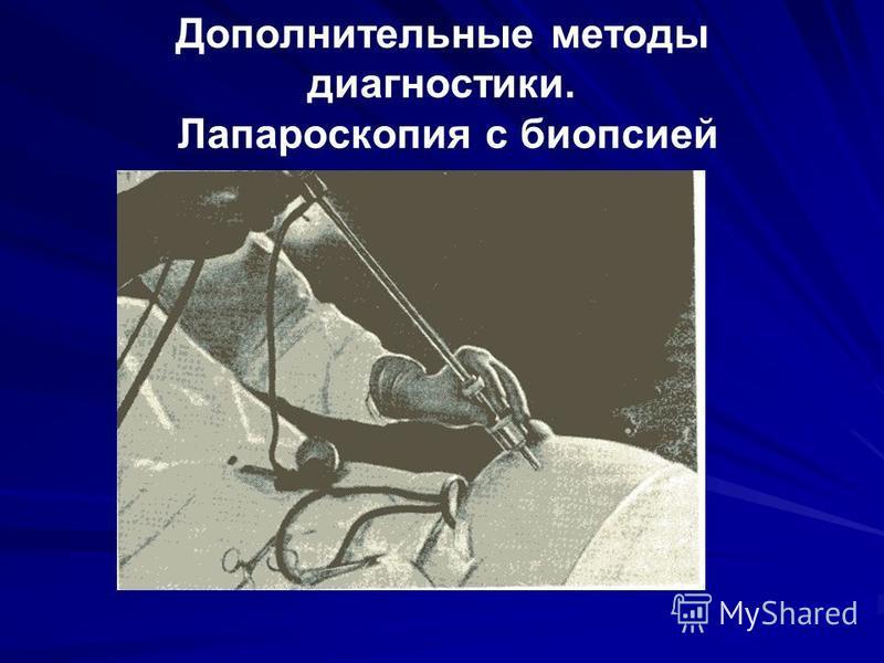 Дополнительные методы диагностики. Лапароскопия с биопсией
