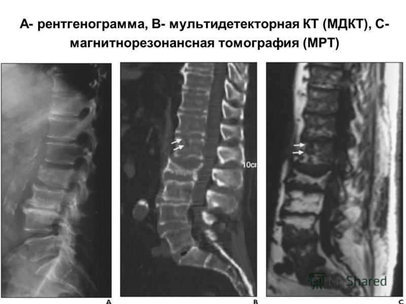 А- рентгенограмма, В- мультидетекторная КТ (МДКТ), С- магнитнорезонансная томография (МРТ)