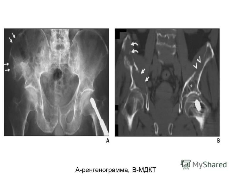 А-ренгенограмма, В-МДКТ