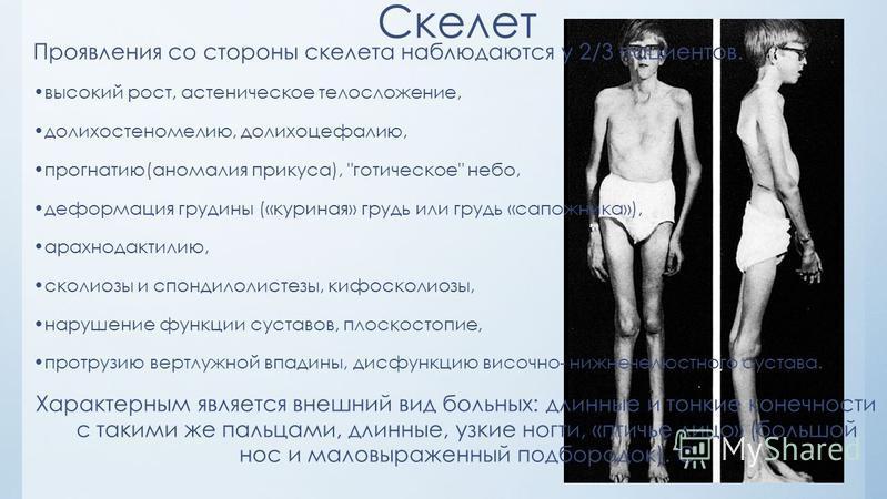 Проявления со стороны скелета наблюдаются у 2/3 пациентов. высокий рост, астеническое телосложение, долихостеномелию, долихоцефалию, прогнатию(аномалия прикуса),