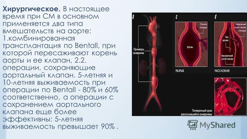 Хирургическое. В настоящее время при СМ в основном применяется два типа вмешательств на аорте: 1. комбинированная трансплантация по Bentall, при которой пересаживают корень аорты и ее клапан, 2.2. операции, сохраняющие аортальный клапан. 5-летняя и 1
