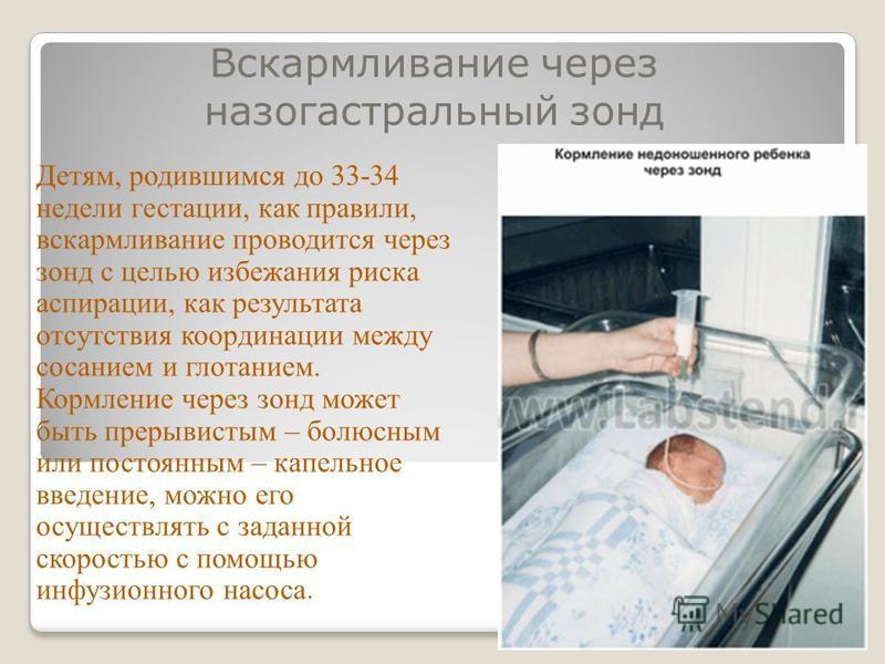Вскармливание через назогастральный зонд Детям, родившимся до 33-34 недели гестации, как правили, вскармливание проводится через зонд с целью избежания риска аспирации, как результата отсутствия координации между сосанием и глотанием. Кормление через