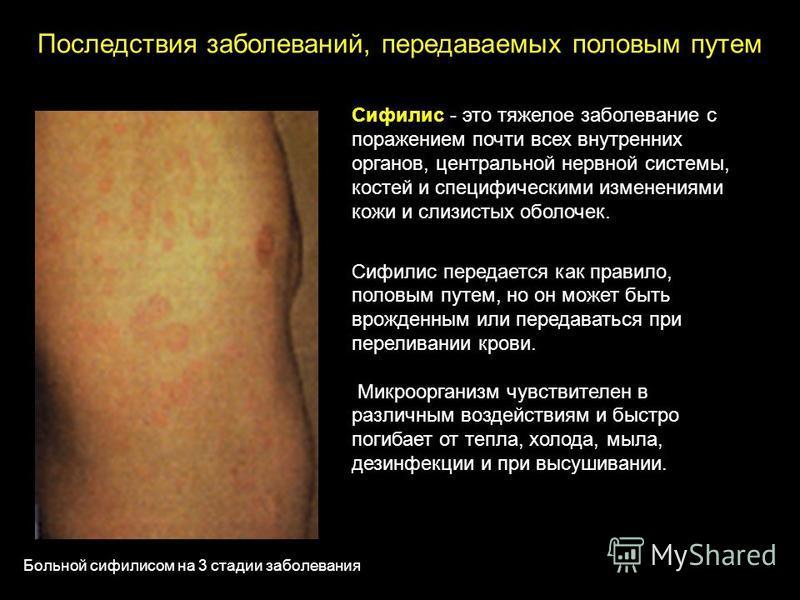Сифилис - это тяжелое заболевание с поражением почти всех внутренних органов, центральной нервной системы, костей и специфическими изменениями кожи и слизистых оболочек. Сифилис передается как правило, половым путем, но он может быть врожденным или п
