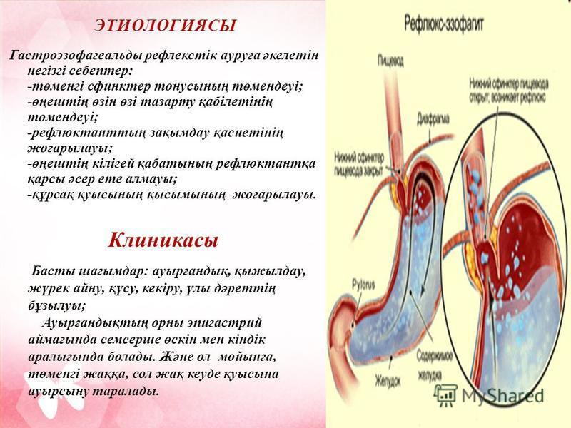 ЭТИОЛОГИЯСЫ ЭТИОЛОГИЯСЫ Гастроэзофагеальды рефлекстік ауруға әкелетін негізгі себептер: -төменгі сфинктер тонусының төмендеуі; -өңештің өзін өзі тазарту қабілетінің төмендеуі; -рефлюктанттың зақымдау қасиетінің жоғарылауы; -өңештің кілігей қабатының