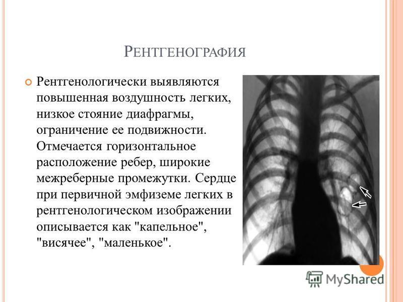 Р ЕНТГЕНОГРАФИЯ Рентгенологически выявляются повышенная воздушность легких, низкое стояние диафрагмы, ограничение ее подвижности. Отмечается горизонтальное расположение ребер, широкие межреберные промежутки. Сердце при первичной эмфиземе легких в рен