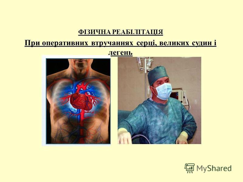 ФІЗИЧНА РЕАБІЛІТАЦІЯ При оперативних втручаннях серці, великих судин і легень