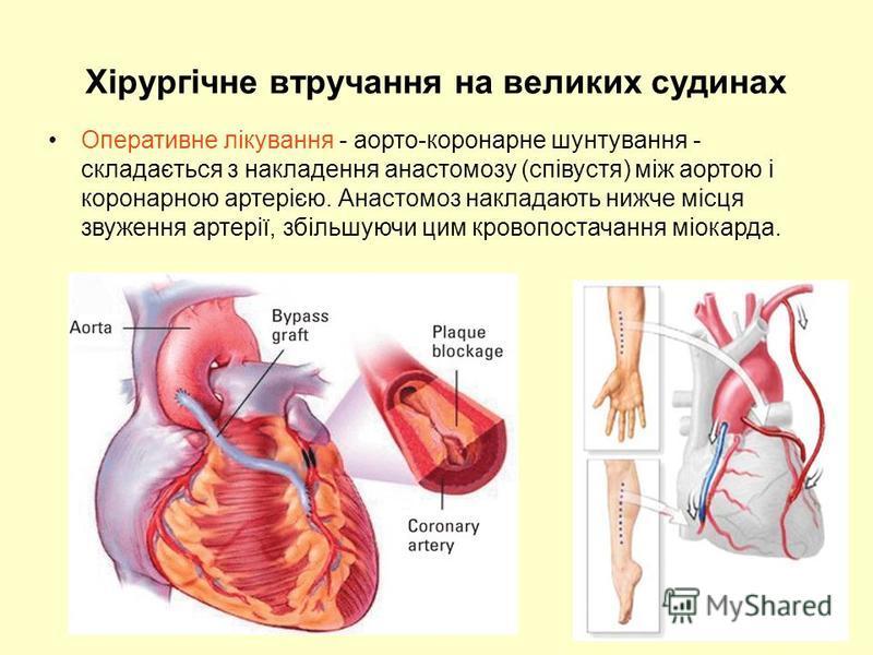 Хірургічне втручання на великих судинах Оперативне лікування - аорто-коронарне шунтування - складається з накладення анастомозу (співустя) між аортою і коронарною артерією. Анастомоз накладають нижче місця звуження артерії, збільшуючи цим кровопостач