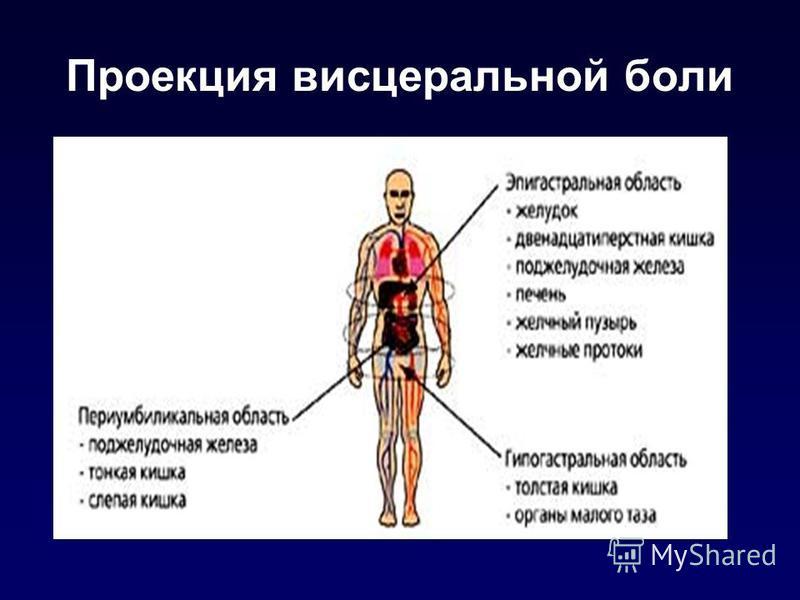 Проекция висцеральной боли
