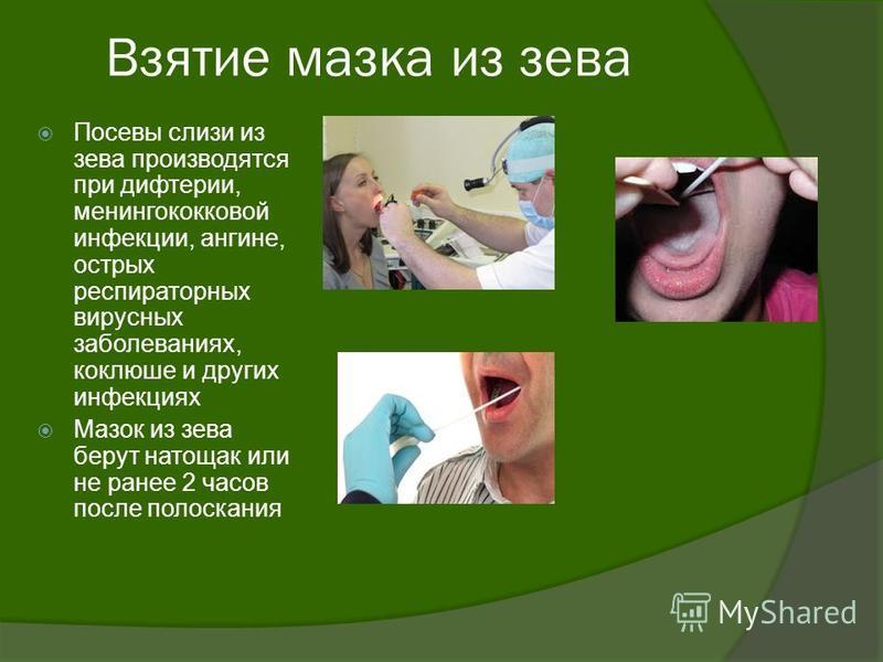 Взятие мазка из зева Посевы слизи из зева производятся при дифтерии, менингококковой инфекции, ангине, острых респираторных вирусных заболеваниях, коклюше и других инфекциях Мазок из зева берут натощак или не ранее 2 часов после полоскания