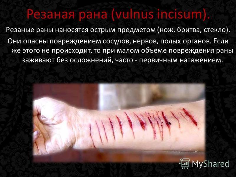 Резаная рана (vulnus incisum). Резаные раны наносятся острым предметом (нож, бритва, стекло). Они опасны повреждением сосудов, нервов, полых органов. Если же этого не происходит, то при малом объёме повреждения раны заживают без осложнений, часто - п