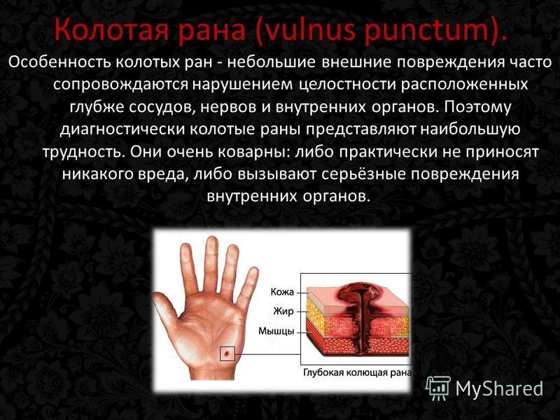 Колотая рана (vulnus punctum). Особенность колотых ран - небольшие внешние повреждения часто сопровождаются нарушением целостности расположенных глубже сосудов, нервов и внутренних органов. Поэтому диагностический колотые раны представляют наибольшую