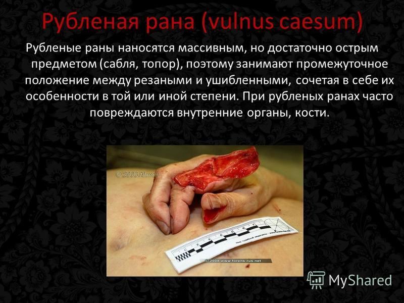 Рубленая рана (vulnus caesum) Рубленые раны наносятся массивным, но достаточно острым предметом (сабля, топор), поэтому занимают промежуточное положение между резаными и ушибленными, сочетая в себе их особенности в той или иной степени. При рубленых