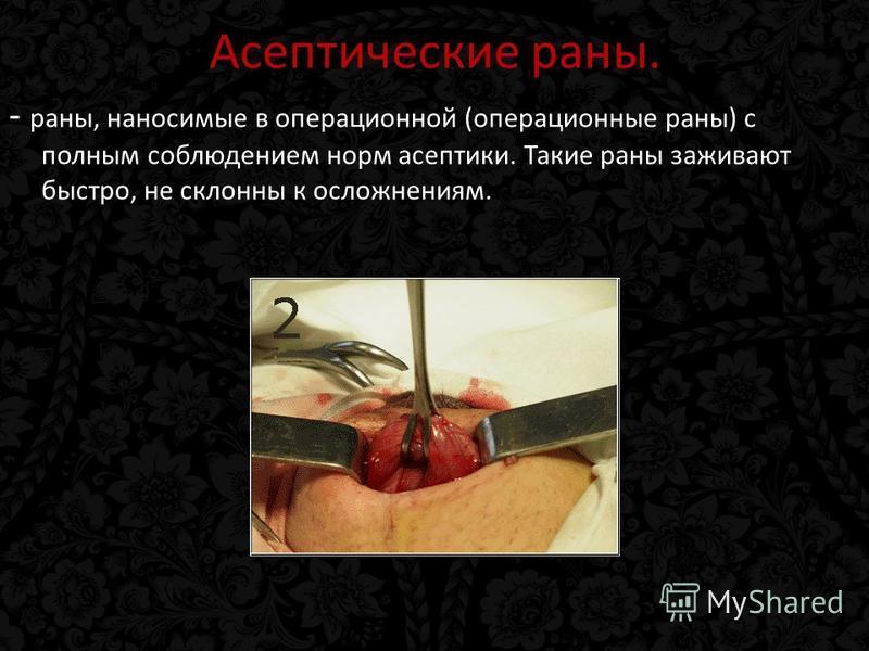 Асептические раны. - раны, наносимые в операционной (операционные раны) с полным соблюдением норм асептики. Такие раны заживают быстро, не склонны к осложнениям.