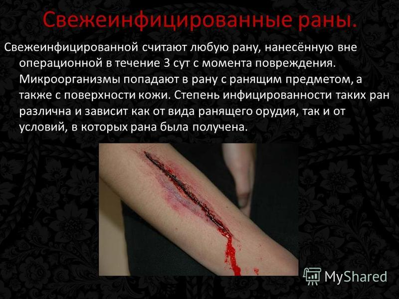 Свежеинфицированные раны. Свежеинфицированной считают любую рану, нанесённую вне операционной в течение 3 сут с момента повреждения. Микроорганизмы попадают в рану с ранящим предметом, а также с поверхности кожи. Степень инфицированности таких ран ра