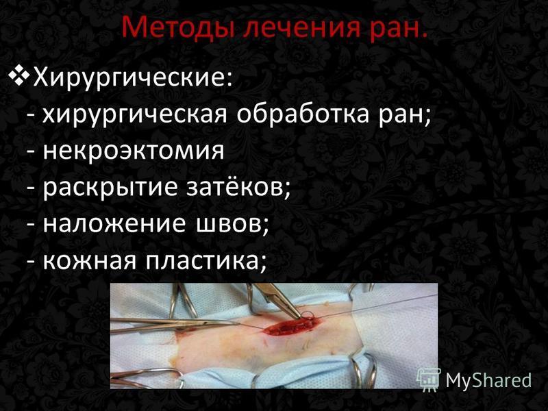 Методы лечения ран. Хирургические: - хирургическая обработка ран; - некроэктомия - раскрытие затёков; - наложение швов; - кожная пластика;