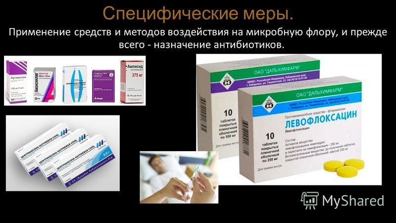 Специфические меры. Применение средств и методов воздействия на микробную флору, и прежде всего - назначение антибиотиков.
