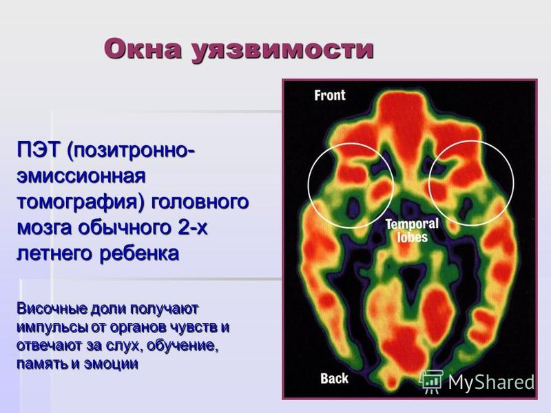 Окна уязвимости ПЭТ (позитронно- эмиссионная томография) головного мозга обычного 2-х летнего ребенка Височные доли получают импульсы от органов чувств и отвечают за слух, обучение, память и эмоции