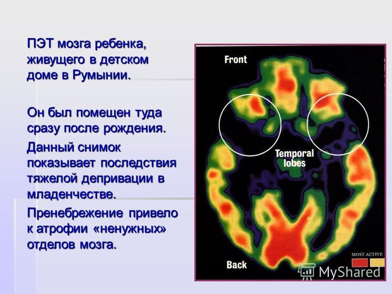 ПЭТ мозга ребенка, живущего в детском доме в Румынии. Он был помещен туда сразу после рождения. Данный снимок показывает последствия тяжелой депривации в младенчестве. Пренебрежение привело к атрофии «ненужных» отделов мозга.