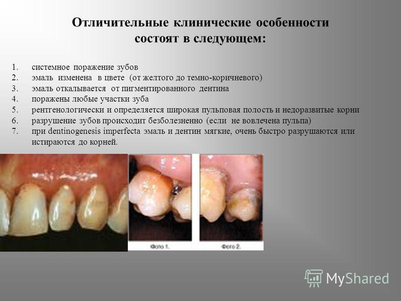 Отличительные клинические особенности состоят в следующем: 1. системное поражение зубов 2. эмаль изменена в цвете (от желтого до темно-коричневого) 3. эмаль откалывается от пигментированного дентина 4. поражены любые участки зуба 5. рентгенологически
