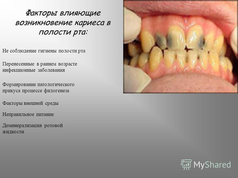 Факторы влияющие возникновение кариеса в полости рта: Не соблюдение гигиены полости рта Перенесенные в раннем возрасте инфекционные заболевания Формирование патологического прикуса процессе филогенеза Факторы внешней среды Неправильное питание Демине