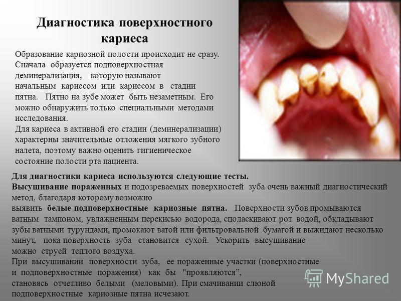 Диагностика поверхностного кариеса Образование кариозной полости происходит не сразу. Сначала образуется подповерхностная деминерализация, которую называют начальным кариесом или кариесом в стадии пятна. Пятно на зубе может быть незаметным. Его можно
