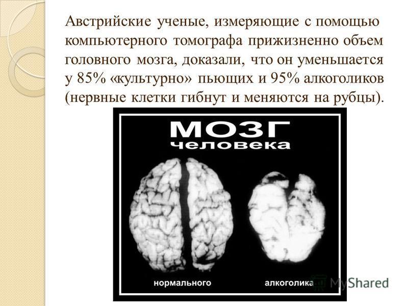 Австрийские ученые, измеряющие с помощью компьютерного томографа прижизненно объем головного мозга, доказали, что он уменьшается у 85% «культурно» пьющих и 95% алкоголиков (нервные клетки гибнут и меняются на рубцы).