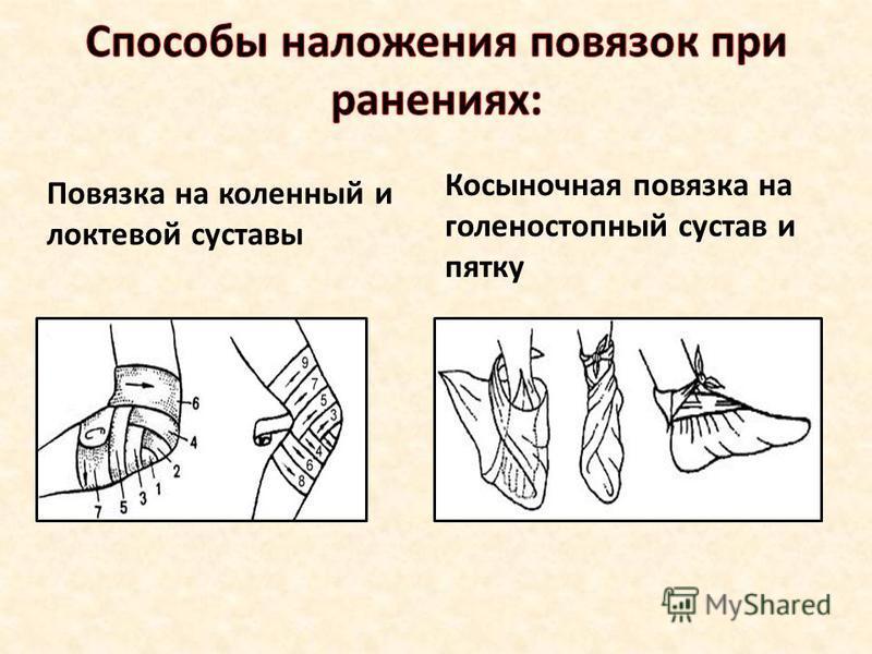 Повязка на коленный и локтевой суставы Косыночная повязка на голеностопный сустав и пятку