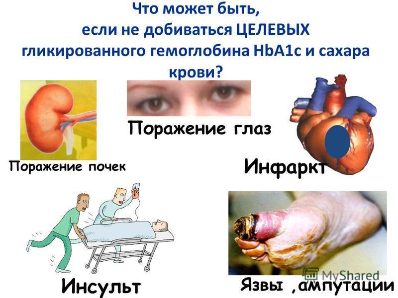Что может быть, если не добиваться ЦЕЛЕВЫХ гликированного гемоглобина HbA1c и сахара крови? Поражение почек Поражение глаз Язвы,ампутации Инфаркт Инсульт