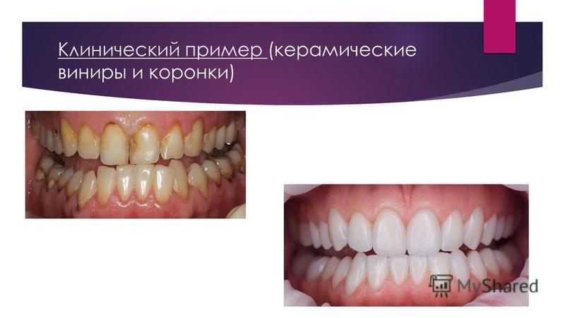 Клинический пример (керамические виниры и коронки)