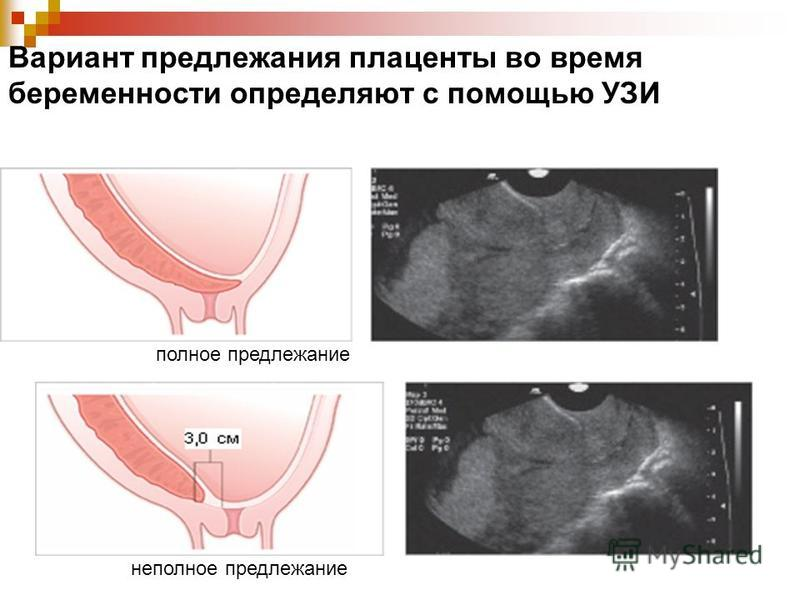 Вариант предлежания плаценты во время беременности определяют с помощью УЗИ полное предлежание неполное предлежание