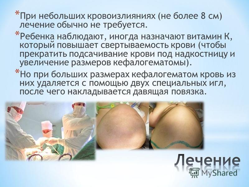 * При небольших кровоизлияниях (не более 8 см) лечение обычно не требуется. * Ребенка наблюдают, иногда назначают витамин К, который повышает свертываемость крови (чтобы прекратить подсачивание крови под надкостницу и увеличение размеров кефалогемато