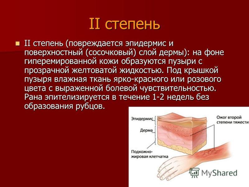 II степень II степень (повреждается эпидермис и поверхностный (сосочковый) слой дермы): на фоне гиперемированной кожи образуются пузыри с прозрачной желтоватой жидкостью. Под крышкой пузыря влажная ткань ярко-красного или розового цвета с выраженной