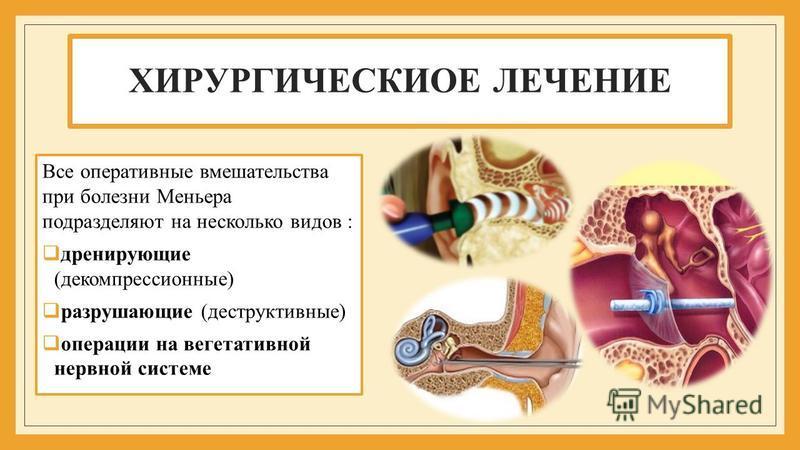 ХИРУРГИЧЕСКИОЕ ЛЕЧЕНИЕ Все оперативные вмешательства при болезни Меньера подразделяют на несколько видов : дренирующие (декомпрессионные) разрушающие (деструктивные) операции на вегетативной нервной системе