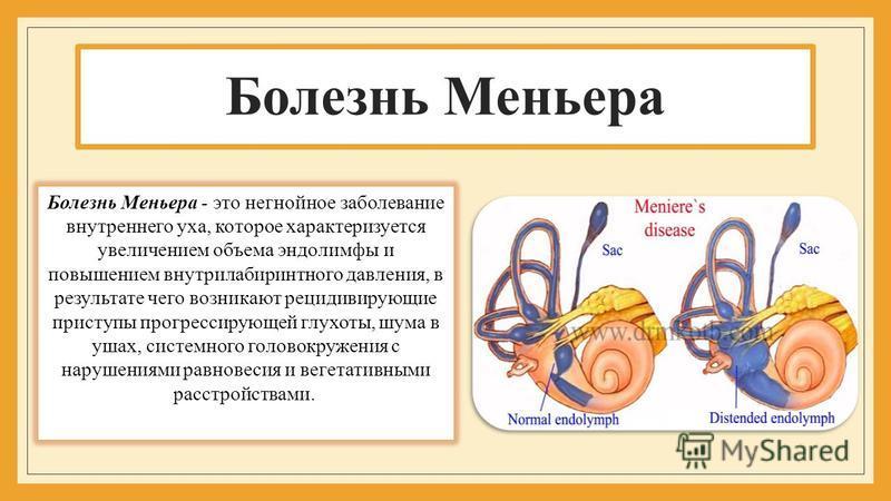 Болезнь Меньера Болезнь Меньера - это негнойное заболевание внутреннего уха, которое характеризуется увеличением объема эндолимфы и повышением внутрилабиринтного давления, в результате чего возникают рецидивирующие приступы прогрессирующей глухоты, ш