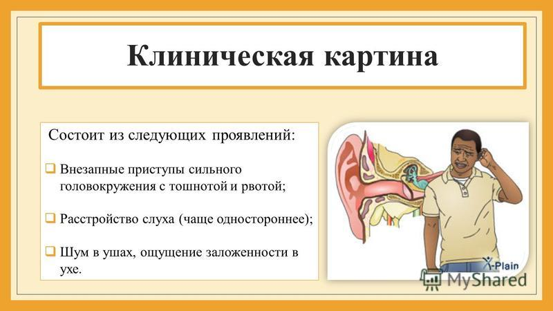 Клиническая картина Состоит из следующих проявлений: Внезапные приступы сильного головокружения с тошнотой и рвотой; Расстройство слуха (чаще одностороннее); Шум в ушах, ощущение заложенности в ухе.