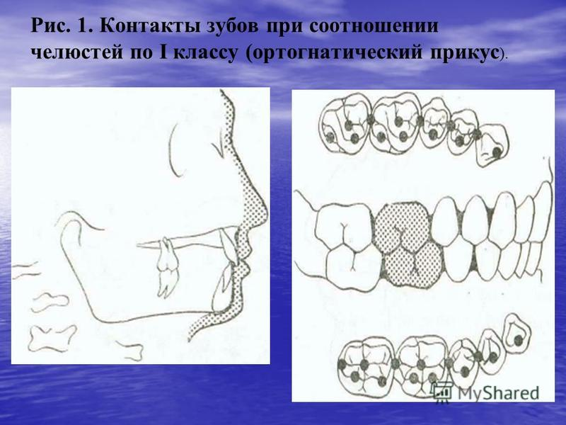 Рис. 1. Контакты зубов при соотношении челюстей по I классу (ортогнатический прикус ).